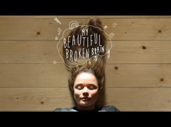 My Beautiful Broken Brain - Kickstarter Trailer - video thumbnail